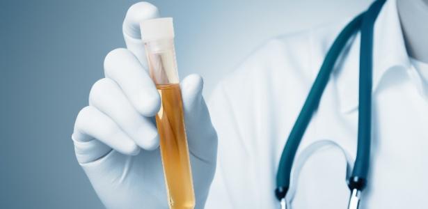 Exame de urina - Getty Images/iStockphoto - Getty Images/iStockphoto