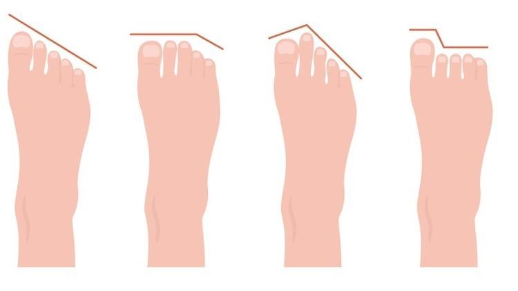 Tipos de pé, pés, dedos dos pés - iStock - iStock